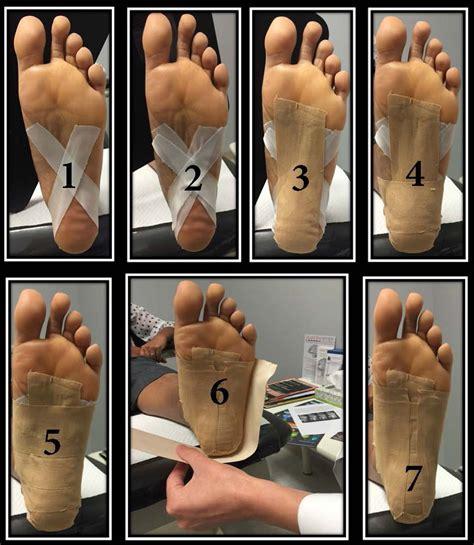 hip flexor soreness treatment for plantar fibromatosis night
