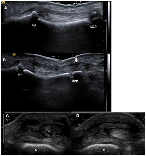 hip flexor strain images echocardiography radial keratotomy
