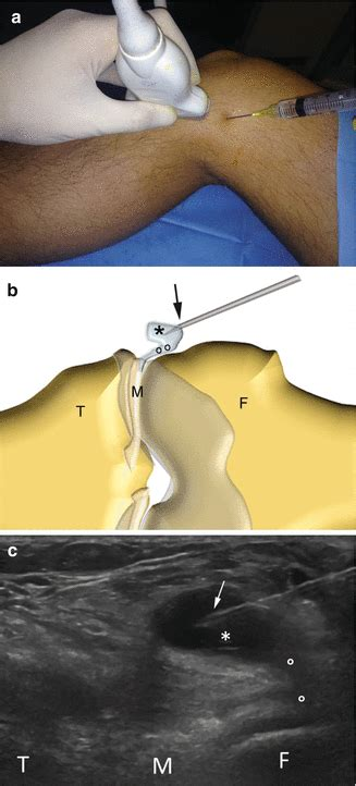 hip flexor strain popping a cystic pimple with a needle