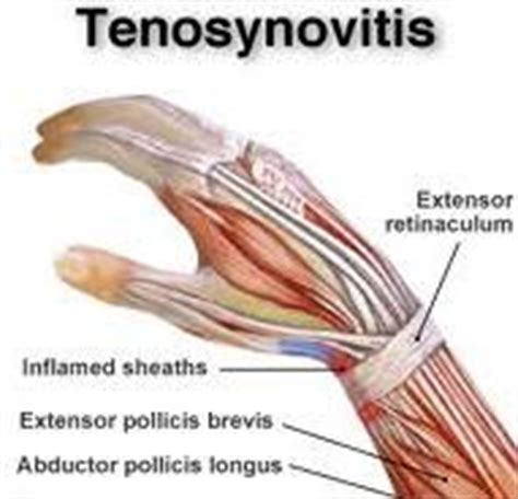hip flexor strain popping cysts and boils 2015