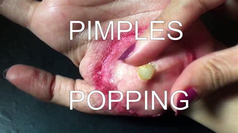 hip flexor strain popping pimples 2017 youtube