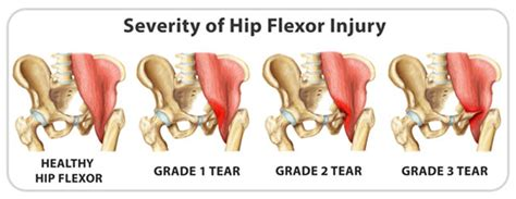 hip flexor strain recovery time grade 1