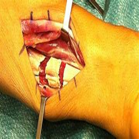 hip flexor tendon lengthening surgery for spasticity