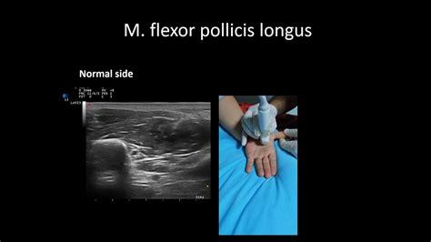 hip flexor tenosynovitis