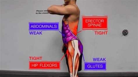 hip flexor tightness anterior pelvic tilt fixing a hole