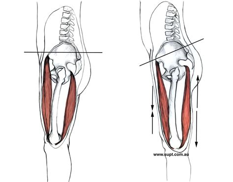 hip flexor tightness anterior pelvic tilt muscles tightness