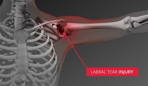 hip flexor torn labrum shoulder pictures front view