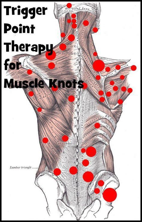 hip flexor trigger point injections trapezius muscle strain