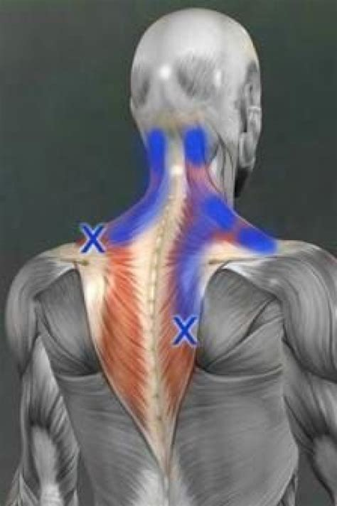 hip flexor trigger point release therapy near me now