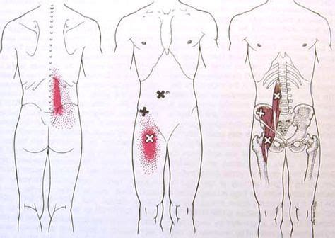 hip flexor trigger point release therapy near me yoga