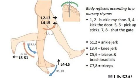 hip flexor weakness neurological conditions chart