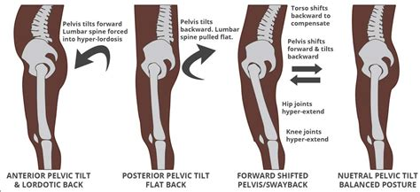 hip flexors tight hamstrings pelvic tilt back problems