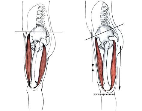 hip flexors tight hamstrings pelvic tilt correction wedge