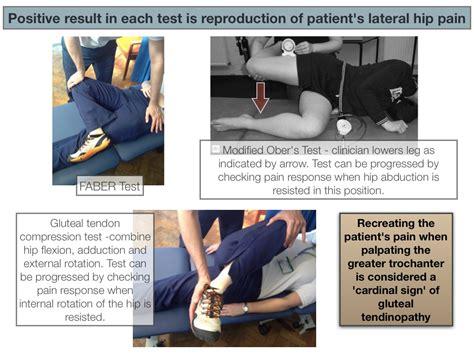 hip gluteus medius tendinosis test