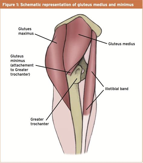 hip gluteus minimus insertional tendinosis supraspinatus treatment
