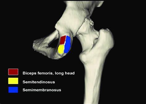 hip hamstring tendinosis at ischial tuberosity injection