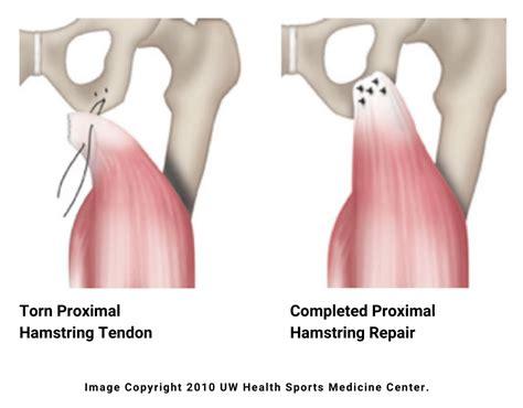 hip hamstring tendinosis surgery for sleep