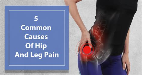 hip leg muscle pain causes