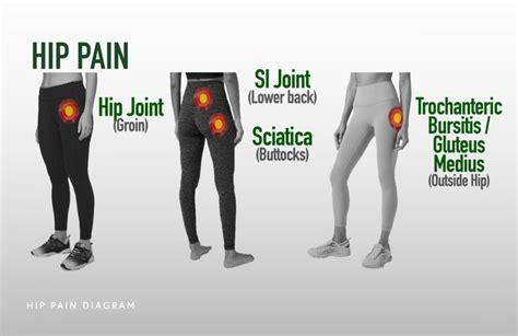 hip pain location diagram