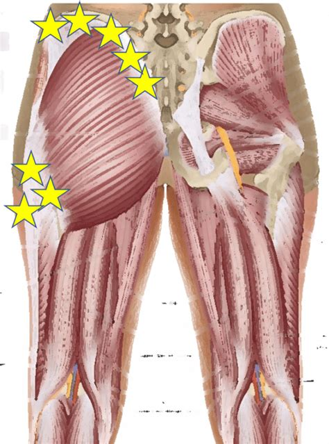 hip replacement muscles and tendons