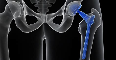 hip treatments other than replacements china