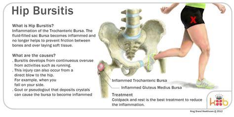 how long to heal a hip injury bursitis
