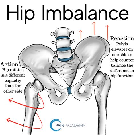 how to diagnose hip imbalances