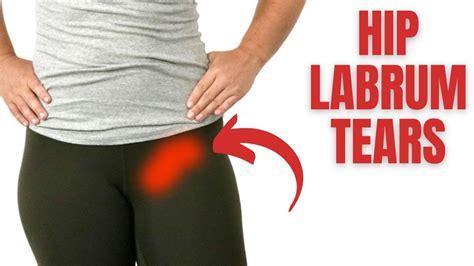 how to fix hip flexor pain after hip labral repair surgery
