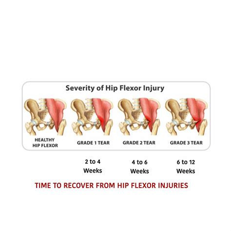 how to heal a hip flexor strain fastenal locations florida