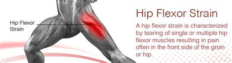 image of hip flexor tendonitis in dancers incorporated
