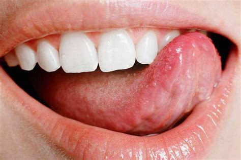 infected mouth sore symptoms