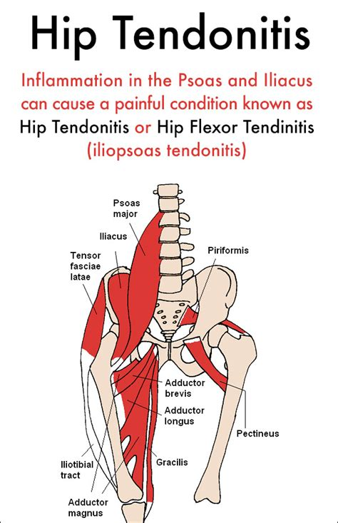 inflamed tendons in hip