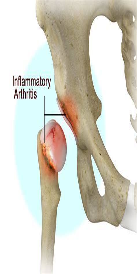 inflammatory arthritis of the hip symptoms