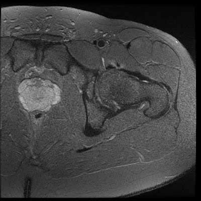 internal hip snapping syndrome mri