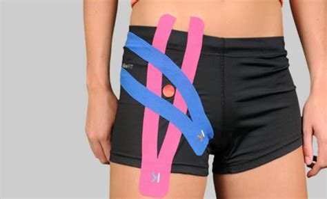 kt tape for hip flexor pain after hip dislocation after hip
