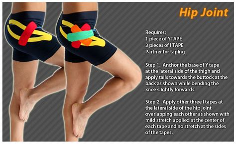 kt tape for hip flexor pain after hip dislocation in infants