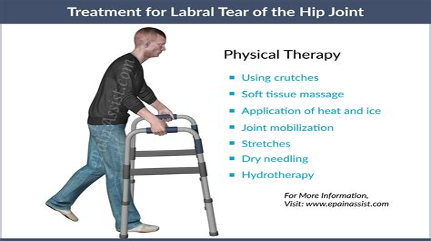 labral tear hip treatment