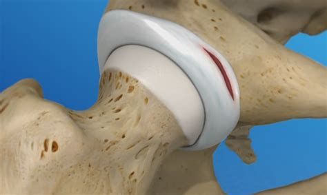 labral tear hip treatments