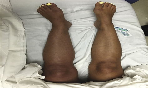 left leg cramping and pain