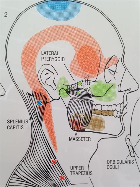 left side of my head and ear hurts