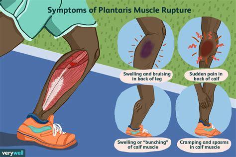 leg muscle tear symptoms