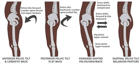 lower back pain and hamstring tightness causes