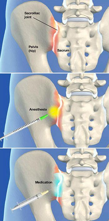 lower back pain and hip flexor pain after hip arthrogram cpt