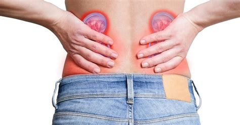 lower back pain causes kidney stones