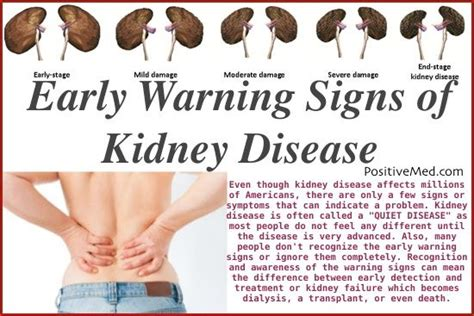 lower back pain chronic kidney disease