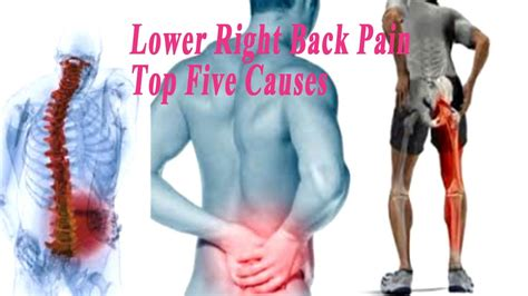 lower back pain right side buttock hip