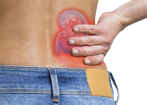 lower back pain right side kidney stone