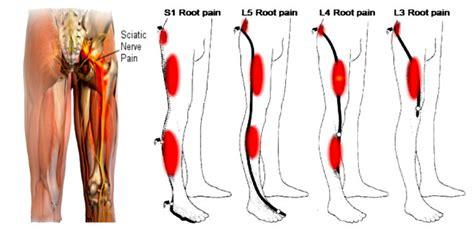 lower back pain right side leg weakness