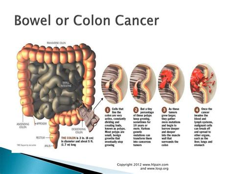 lower left back pain colon cancer