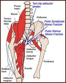 measuring hip flexor tightness pelvic fractures signs